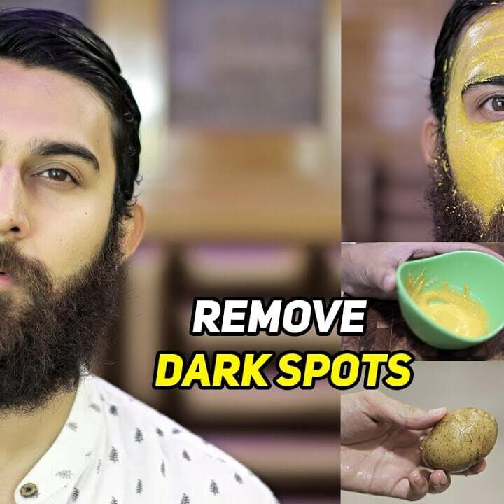 6 Cures to Remove Dark Spots