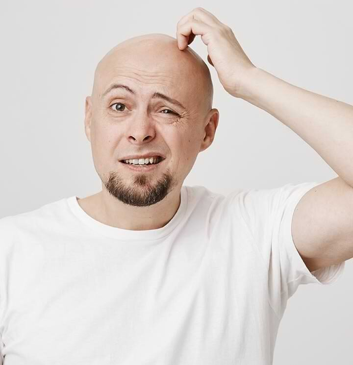 What Are the Reasons, Signs, And Treatment of Baldness?