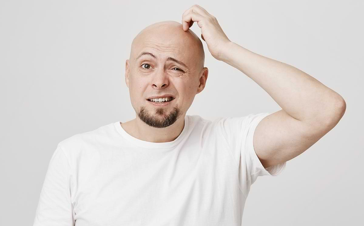 What Are the Reasons, Signs, And Treatment of Baldness_